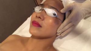 Thảo Linh Beauty Laser siêu trị nám